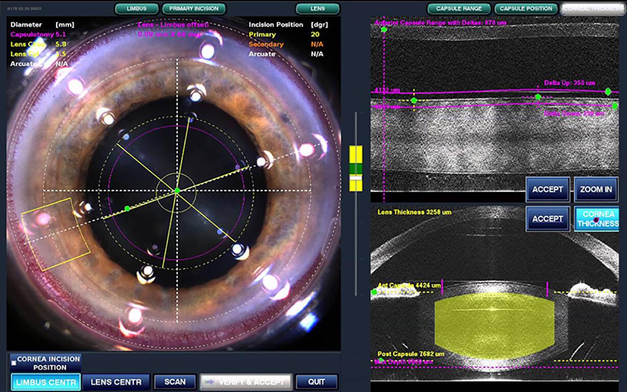 Chirurgia della cataratta - Chirurgia della cataratta con laser a femtosecondi