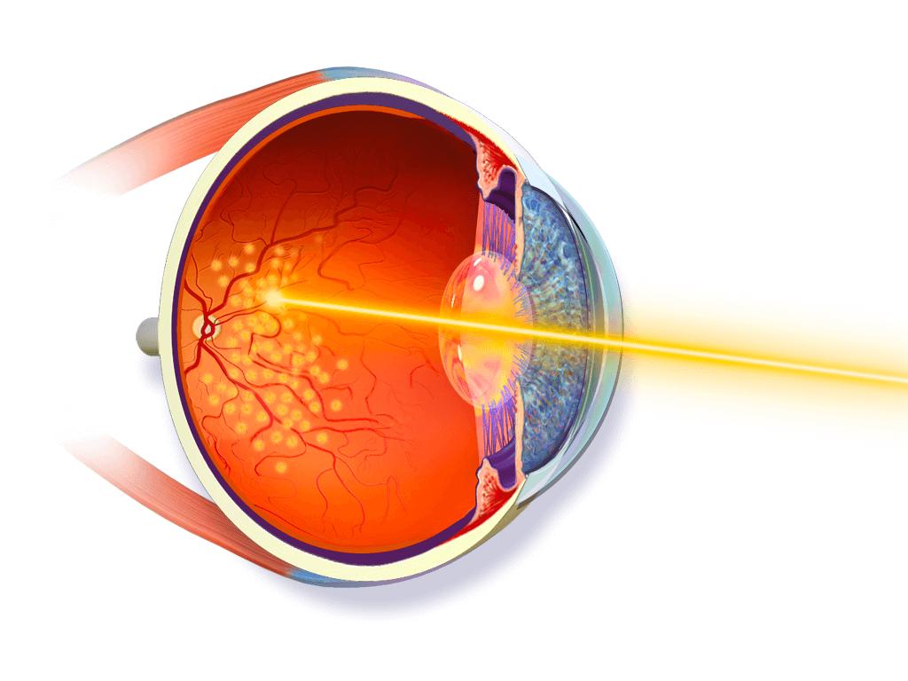 Laser retinico - Impatti laser sulla retina