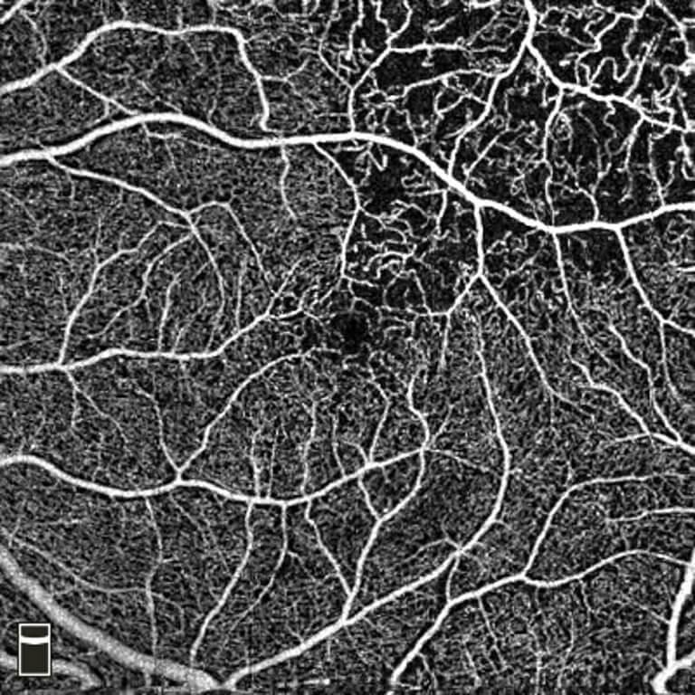 OCTA - Scansione OCTA in retinopatia diabetica