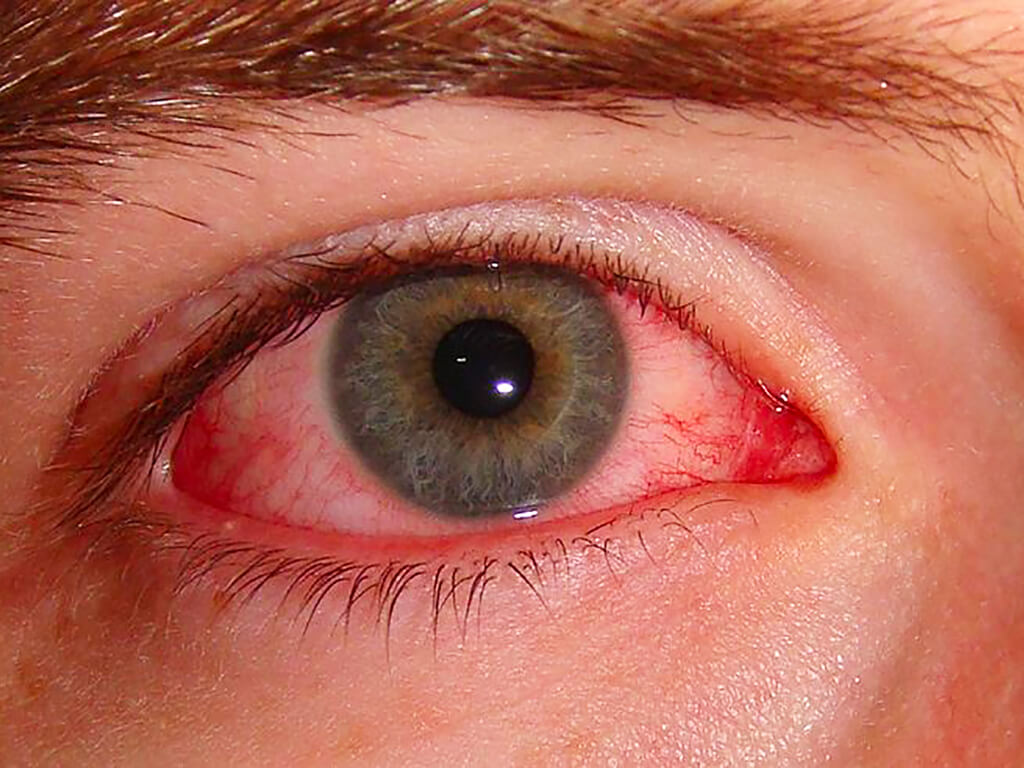 Occhio rosso - congiuntivite