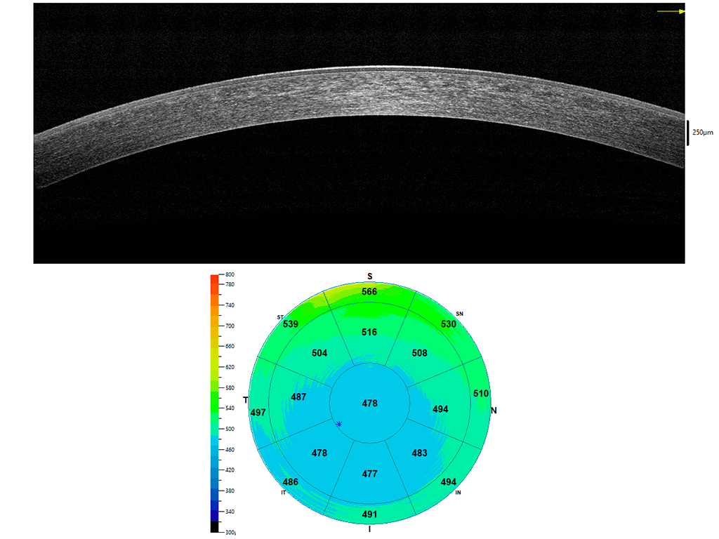 Pachimetria corneale - Mappa pachimetrica
