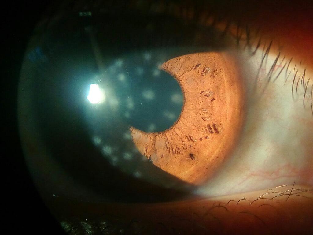 Patologie corneali - Cheratite da Adenovirus