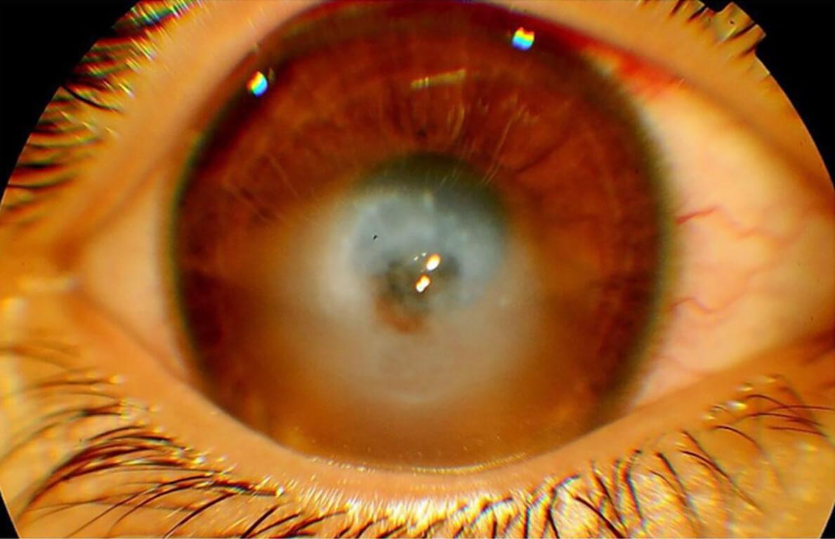 Patologie corneali - Idrope corneale in cheratocono