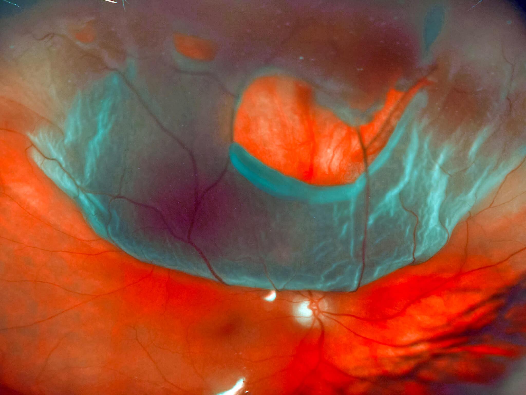 Patologie della retina - Distacco di retina