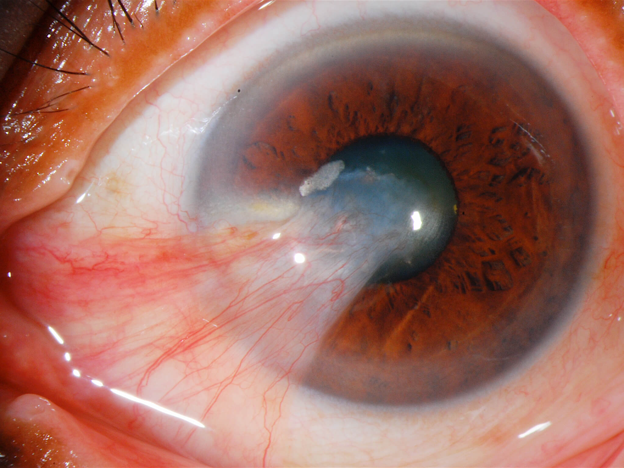 Pterigio - Pterigio nasale con invasione corneale